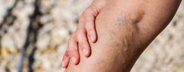I Have Varicose Vein(s), What Should I Do?